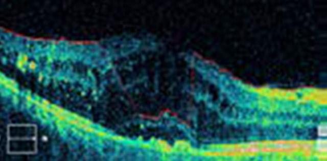 OCT - dijabetička makulopatija