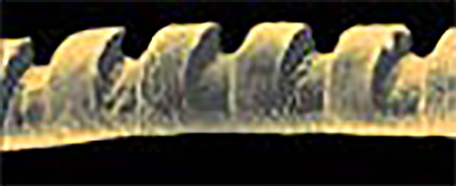 Preciznost lasera na ljudskoj dlaci
