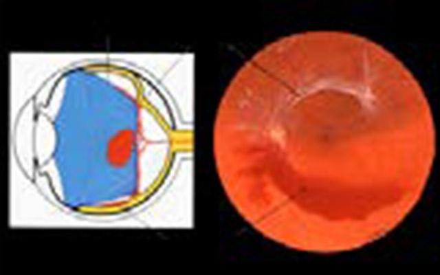 Vitreo retinopatia diabetica